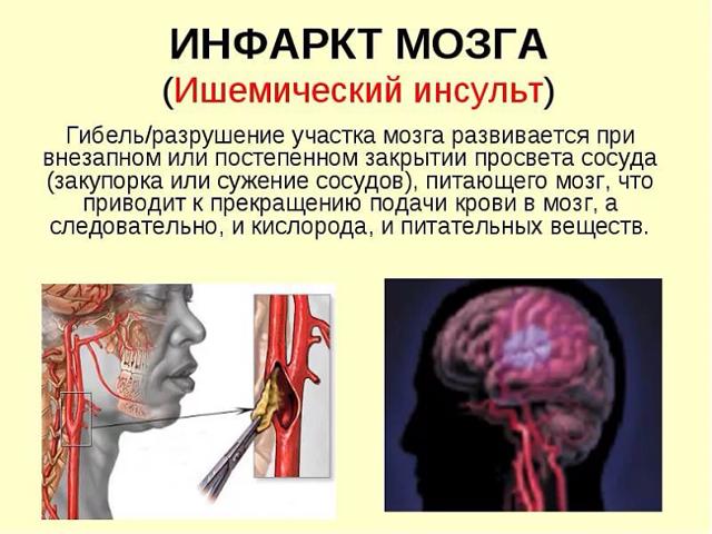 Ишемический инсульт что это такое?