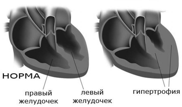 Что такое кардиомегалия, или «бычье сердце»?