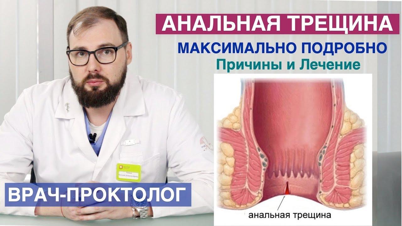 Симптомы и причины острого парапроктита, лечение обострения парапроктита