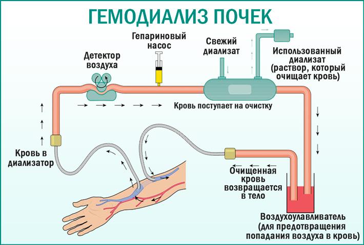 Гемодиализ. что такое гемодиализ, показания, противопоказания, виды процедур :: polismed.com