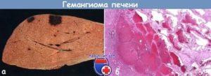 Гемангиома печени. лечение гемангиомы печени в онкоцентре медицина 24/7
