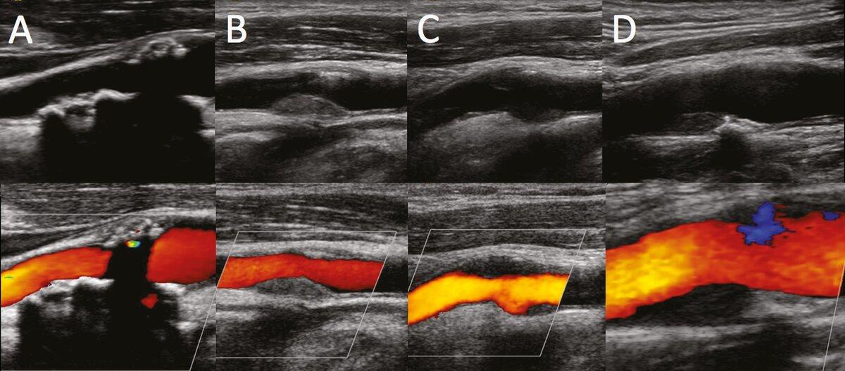 Брахиоцефальные артерии (бца): роль, анатомия, патология и методы её диагностики