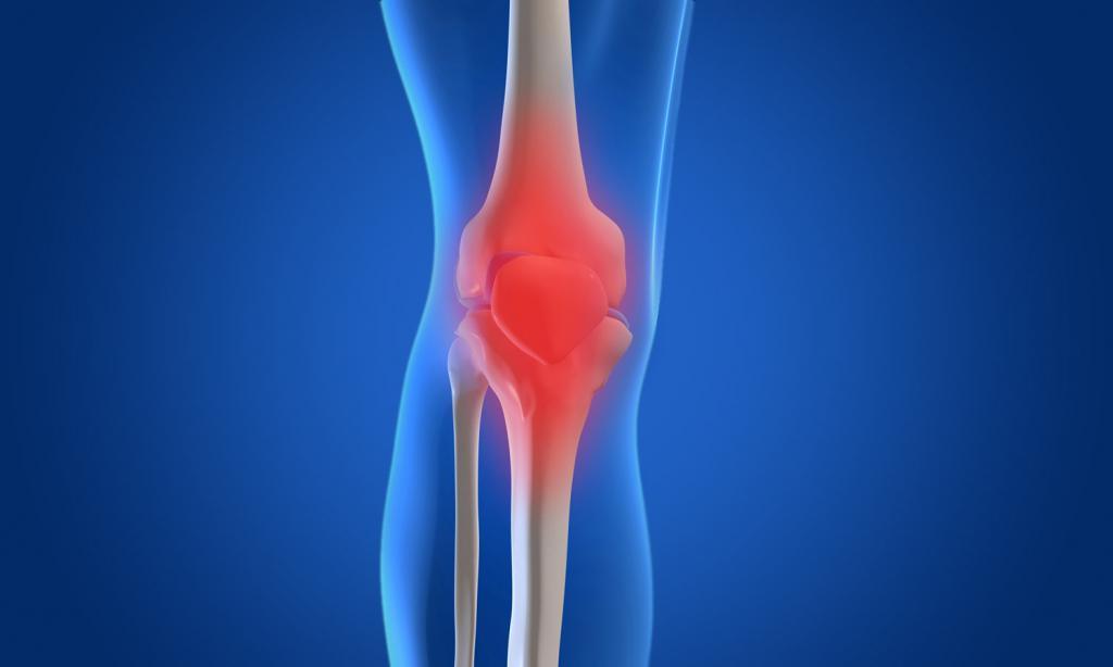 Что такое остеоартрит, причины и симптомы... - zdorsustav.ru