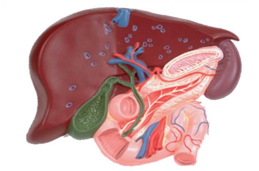 Острый холецистит: причины, симптомы, диагностика и лечение