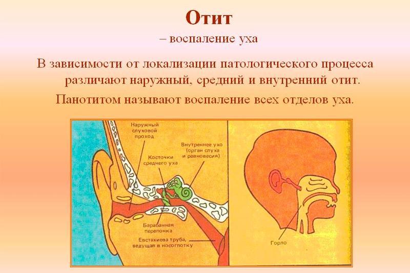 Что такое отит уха и как его лечить?