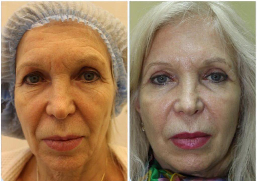 Что такое филлеры для лица: фото до и после контурной пластики и объемного моделирования, опасна ли процедура?