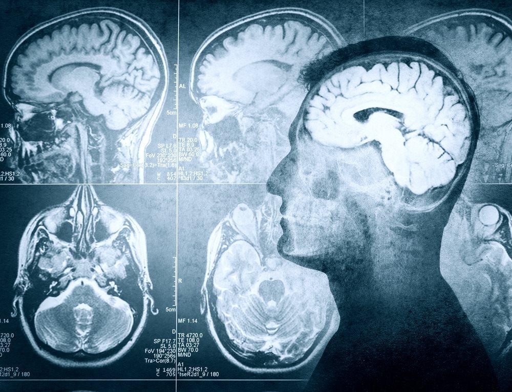 Отёк головного мозга: причины, симптомы, лечение, последствия, дагностика