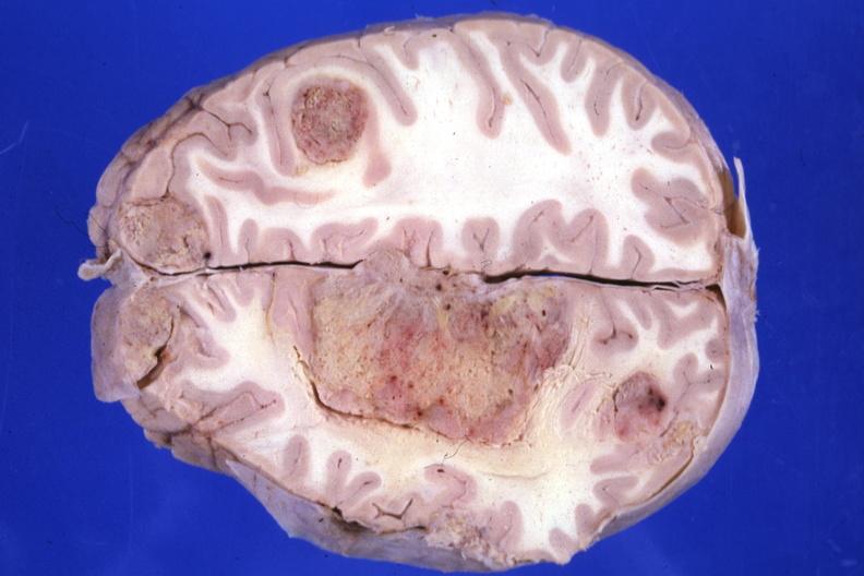 Менингиома: причины, признаки, прогноз, диагностика и лечение менингиомы головного мозга в tomoclinic