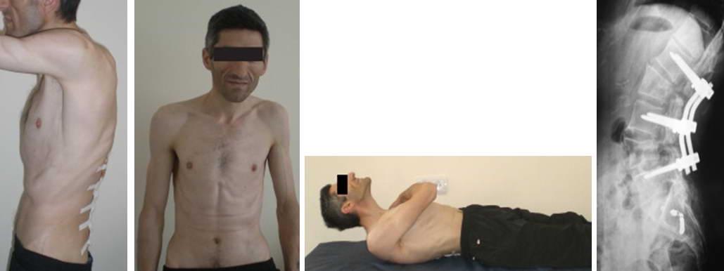 Болезнь бехтерева: симптомы,  фото, лечение