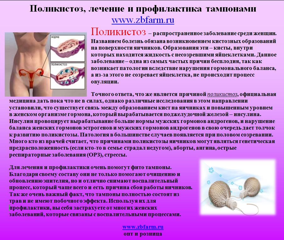 Синдром поликистозных яичников – симптомы, диета, лечение