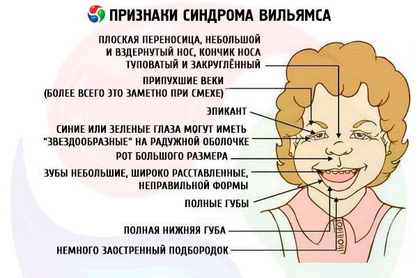 Синдром вильямса: лечение, причины, симптомы, признаки