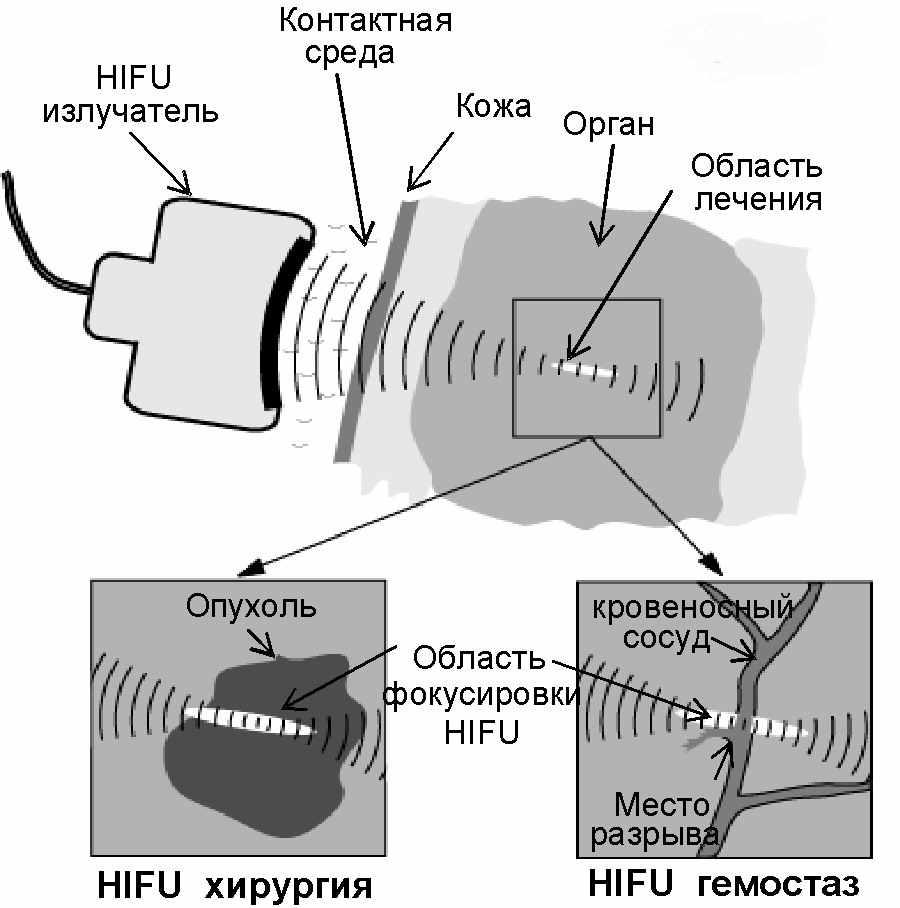 Узи (ультразвуковая исследование): что это такое, как делается диагностика, какой бывает