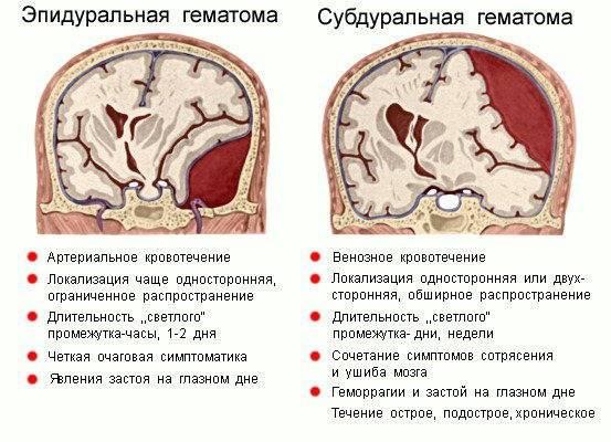 Чем опасен стволовой и прочий инсульт