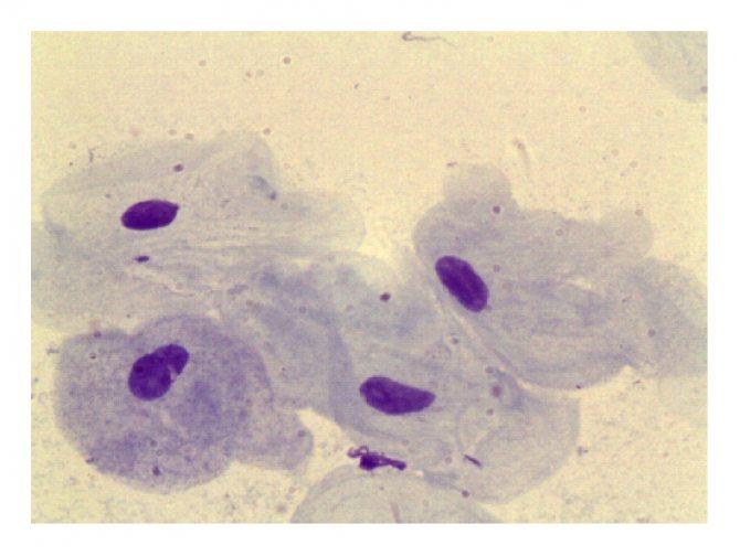 Ключевые клетки в мазке у женщин обнаружены