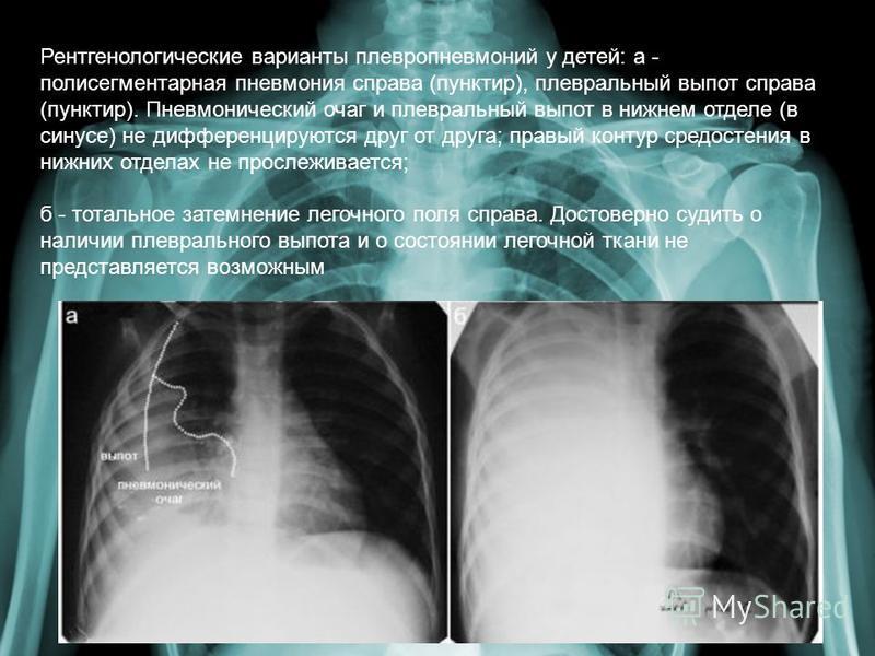 Полисегментарная пневмония – что это такое?