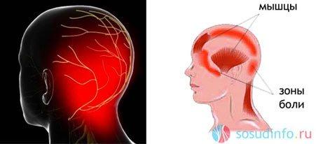 Что такое вертеброгенная цервикокраниалгия, причины, симптомы