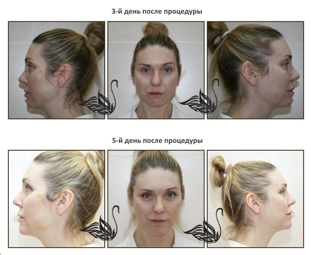 Птоз лица: как бороться с ослаблением мышц? практические советы и рекомендации косметологов: время можно победить!