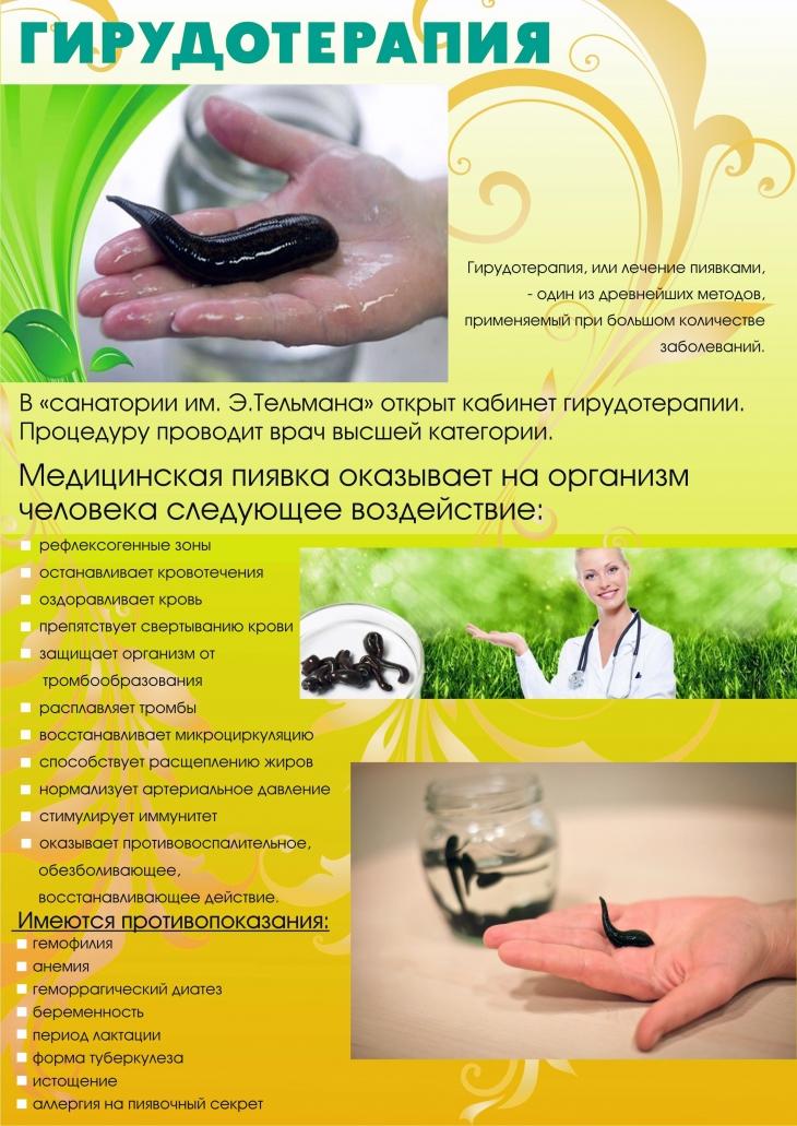 Гирудотерапия: противопоказания