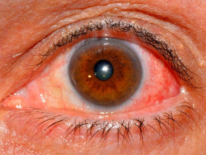 Причины и симптомы иктеричности склер