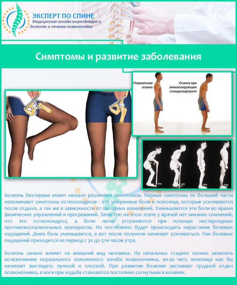 Болезнь бехтерева у мужчин: специфика протекания и лечения