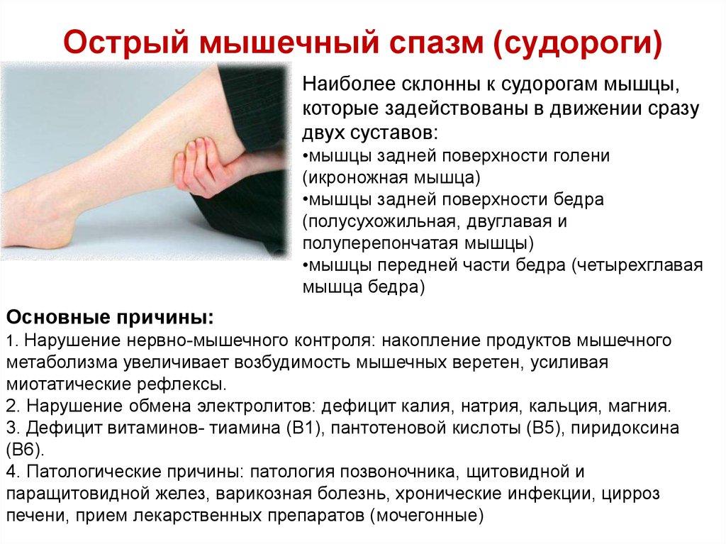 Судороги (спазм): что это такое, от чего бывает судорожный спазм мышц, виды, причины и лечение спазмов