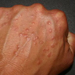 На руках цыпки - причины появления, процедуры и средства для лечения заболевания в домашних условиях