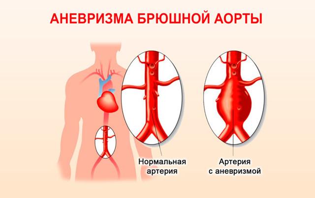 Аневризма аорты сердца: что это такое, симптомы и признаки, лечение и классификация, код по мкб-10