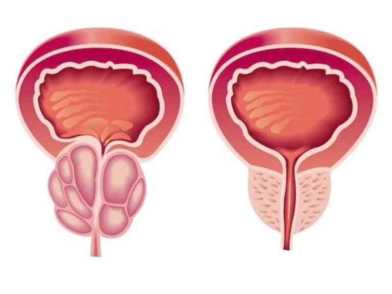 Диффузно-узловая гиперплазия предстательной железы:что это такое, описание макропрепарата, лечение | prostatitaid.ru