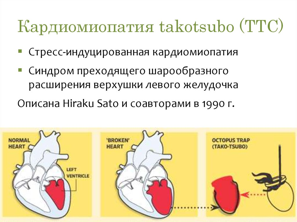 Причины, симптомы и лечение дилатационной кардиомиопатии