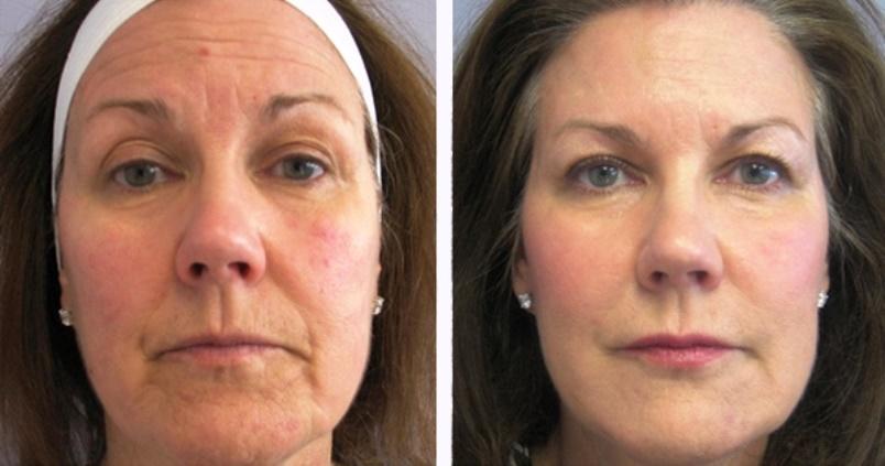 Биоревитализация лица: что это такое, эффект, фото до и после, отзывы