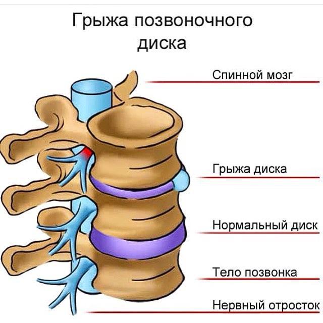 Протрузия межпозвонковых дисков: симптомы и лечение