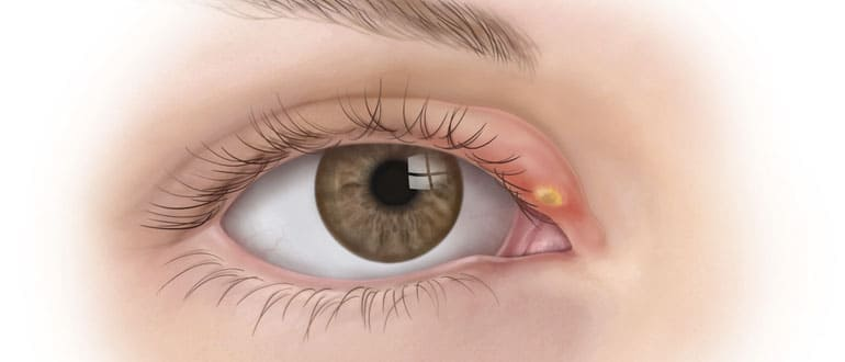Ячмень на глазу. как лечить?