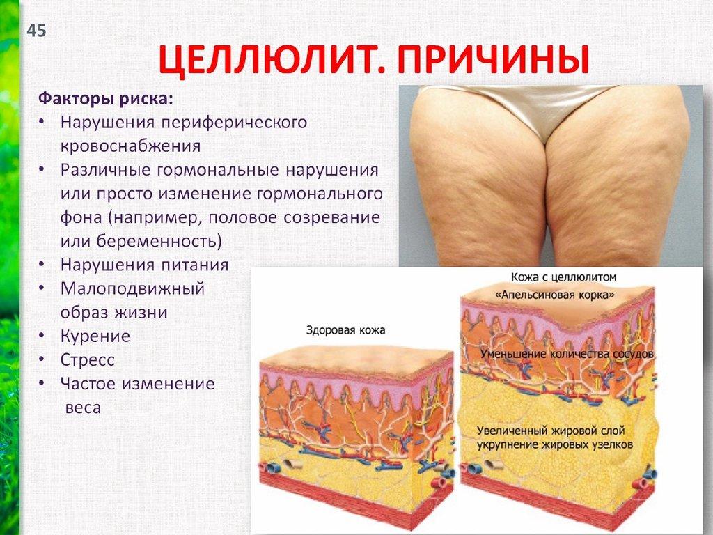 Причины возникновения целлюлита