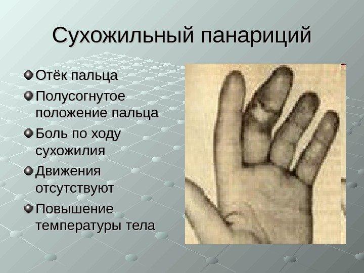 Что такое панариций пальцев рук и ног, виды лечения у детей и взрослых