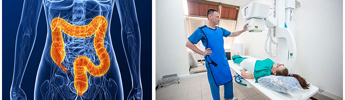 Ирригоскопия кишечника: показания, противопоказания, подготовка