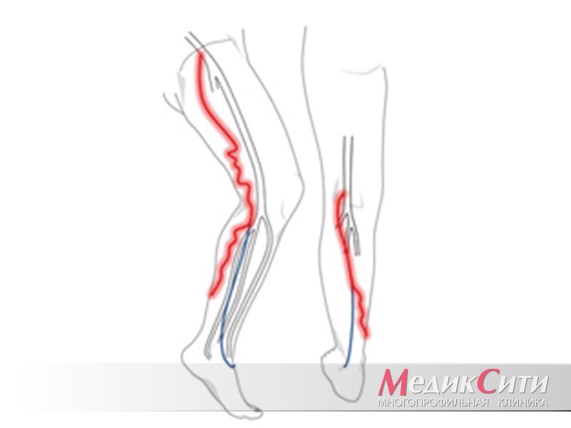 Тромбофлебит нижних конечностей — заболевание опасное для жизни