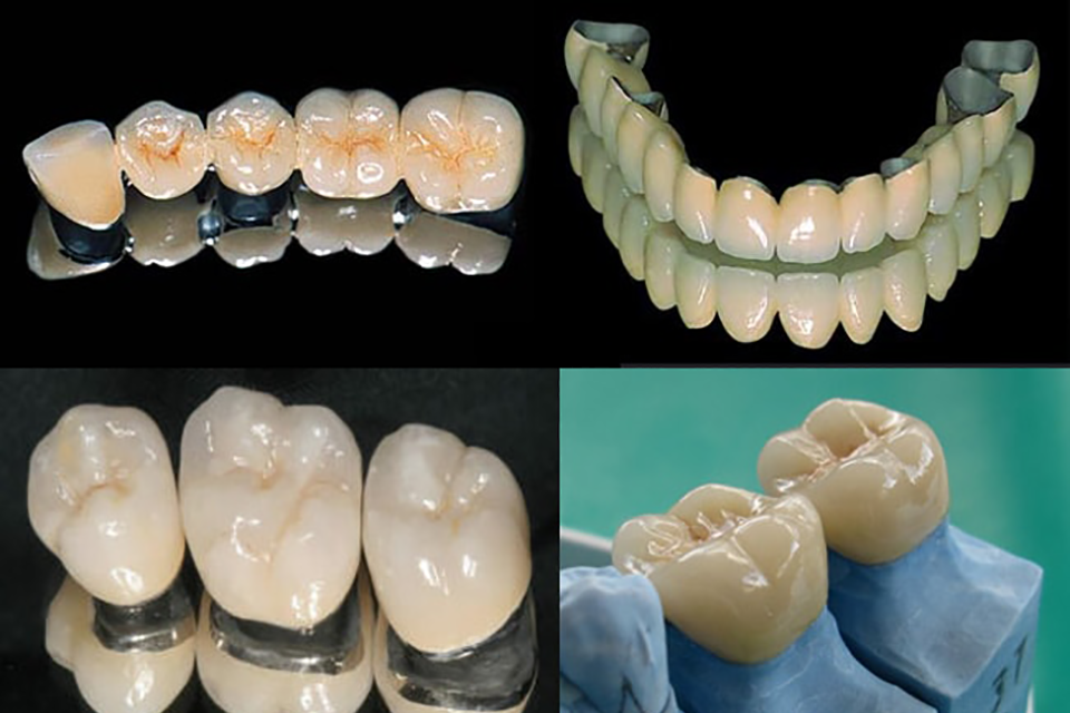 Коронки на зуб (зубные коронки)- цены и виды, фото до и после