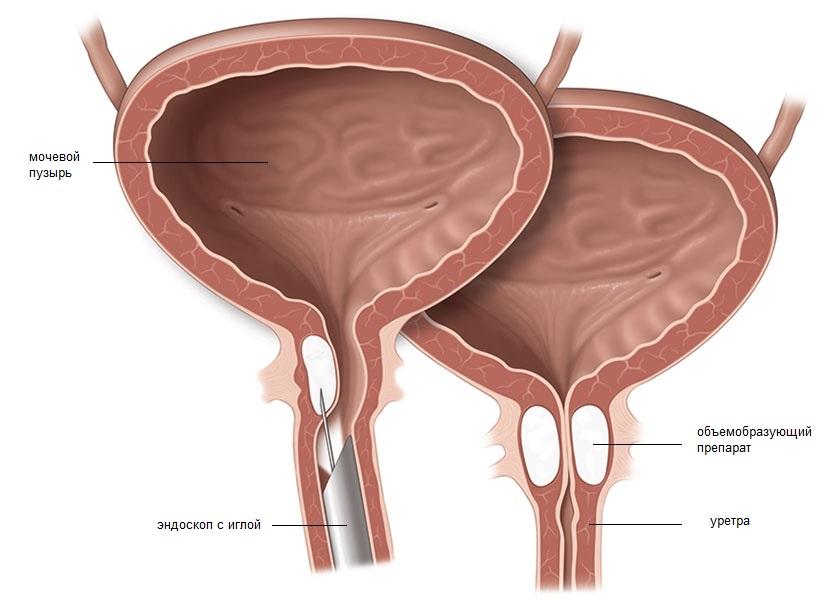 Дивертикулез мочевого пузыря симптомы лечение у женщин