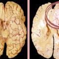 Глиобластома головного мозга: причины появления, лечение, степени
