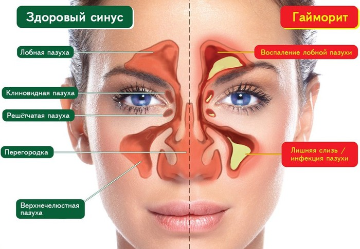 Этмоидит. причины, симптомы, признаки, диагностика и лечение патологии :: polismed.com
