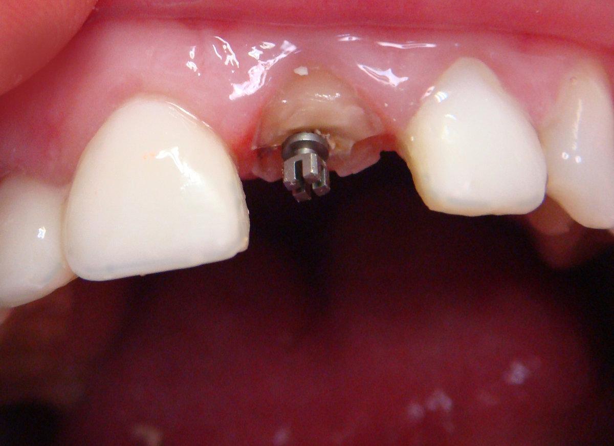Штифт в зубе: что это такое и зачем нужен