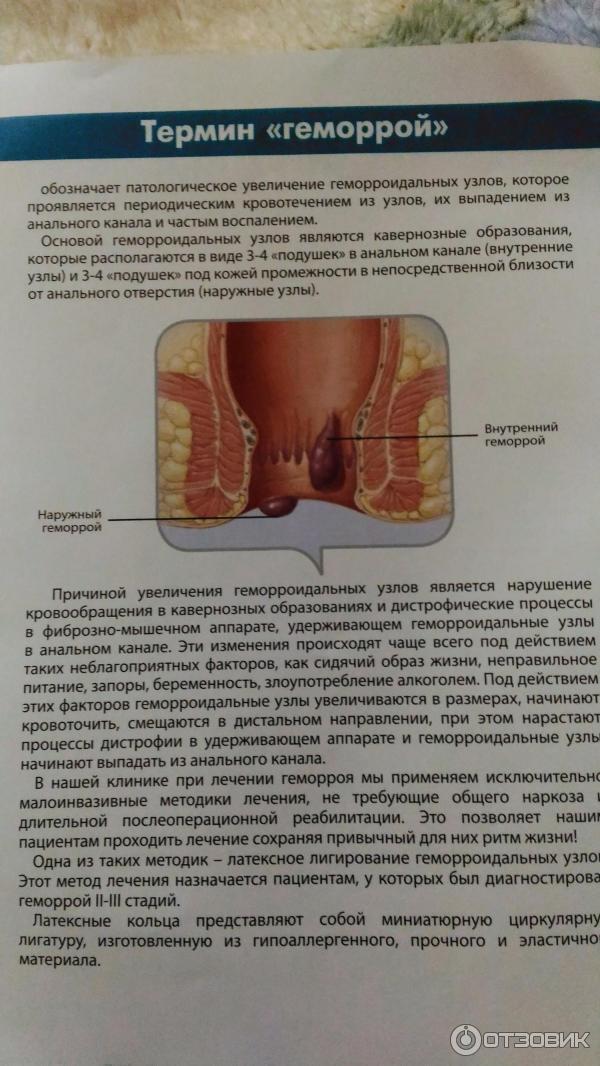 Геморрой - причины, профилактика, лечение