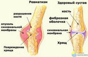 Внесуставный ревматизм - симптомы болезни, профилактика и лечение внесуставного ревматизма, причины заболевания и его диагностика на eurolab