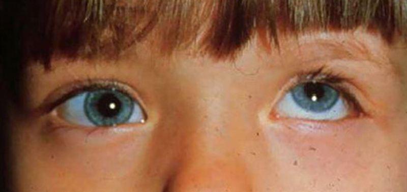 Нистагм: что это такое, симптомом каких болезней является