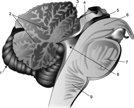 Атрофические изменения и нарушения мозжечка головного мозга