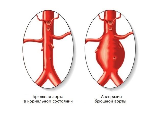 Аневризма сердца - что это, симптомы, диагностика, лечение