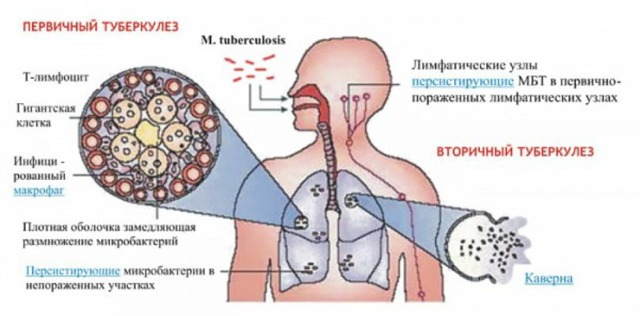 Туберкулома легких: что это, причины, симптомы, лечение