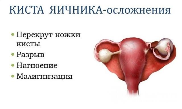 Киста яичника: диагностика у женщин, когда делать узи и как на нем выглядит новообразование + зачем сдавать анализ на хгч