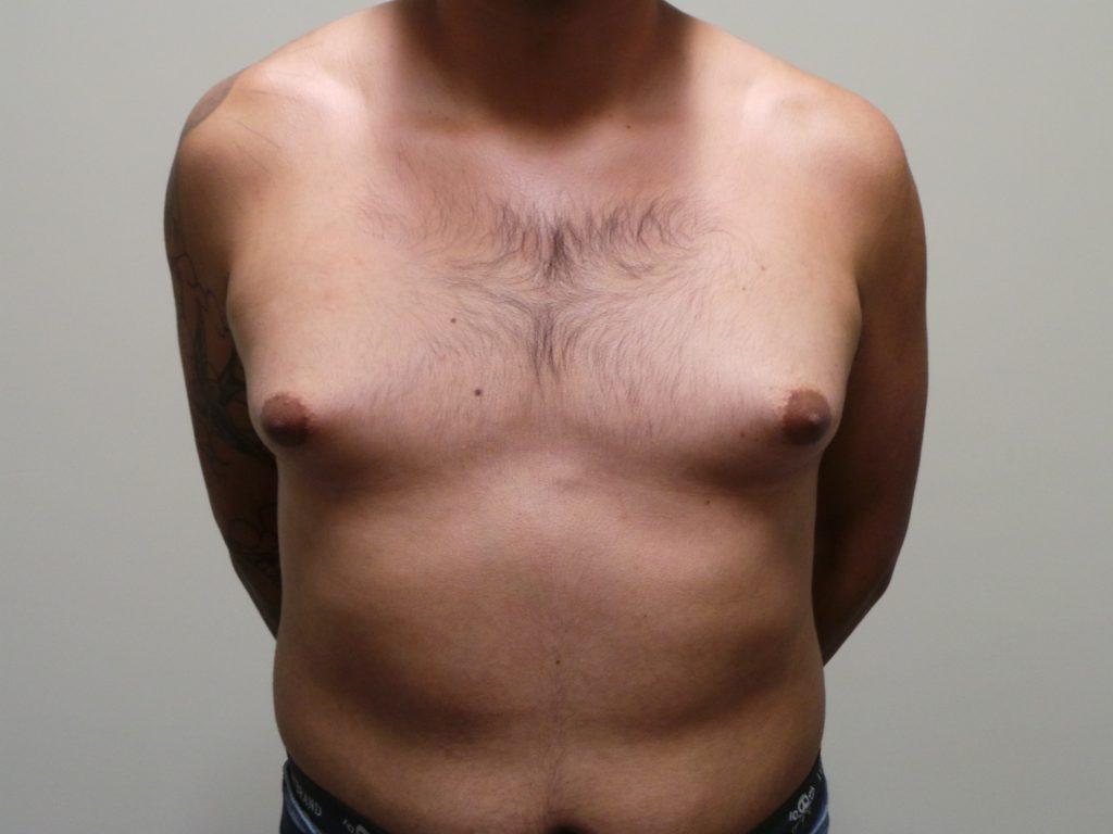 Гинекомастия у мужчин: причины и симптомы недуга, рекомендации по лечению