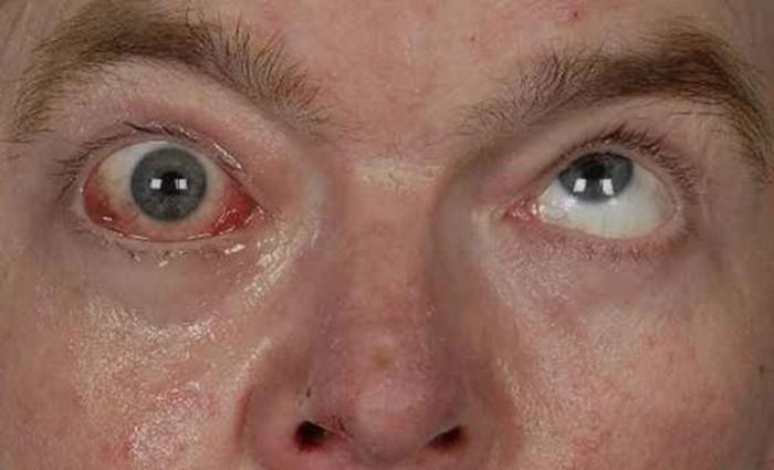 Анизокория — википедия с видео // wiki 2